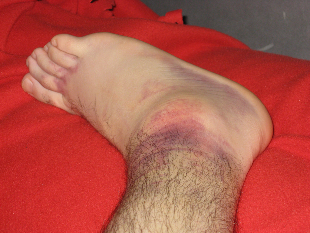 Common Causes of Foot and Ankle Swelling